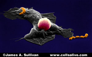Macrophage. - note the agressive pod extending toward a foreign microbe.